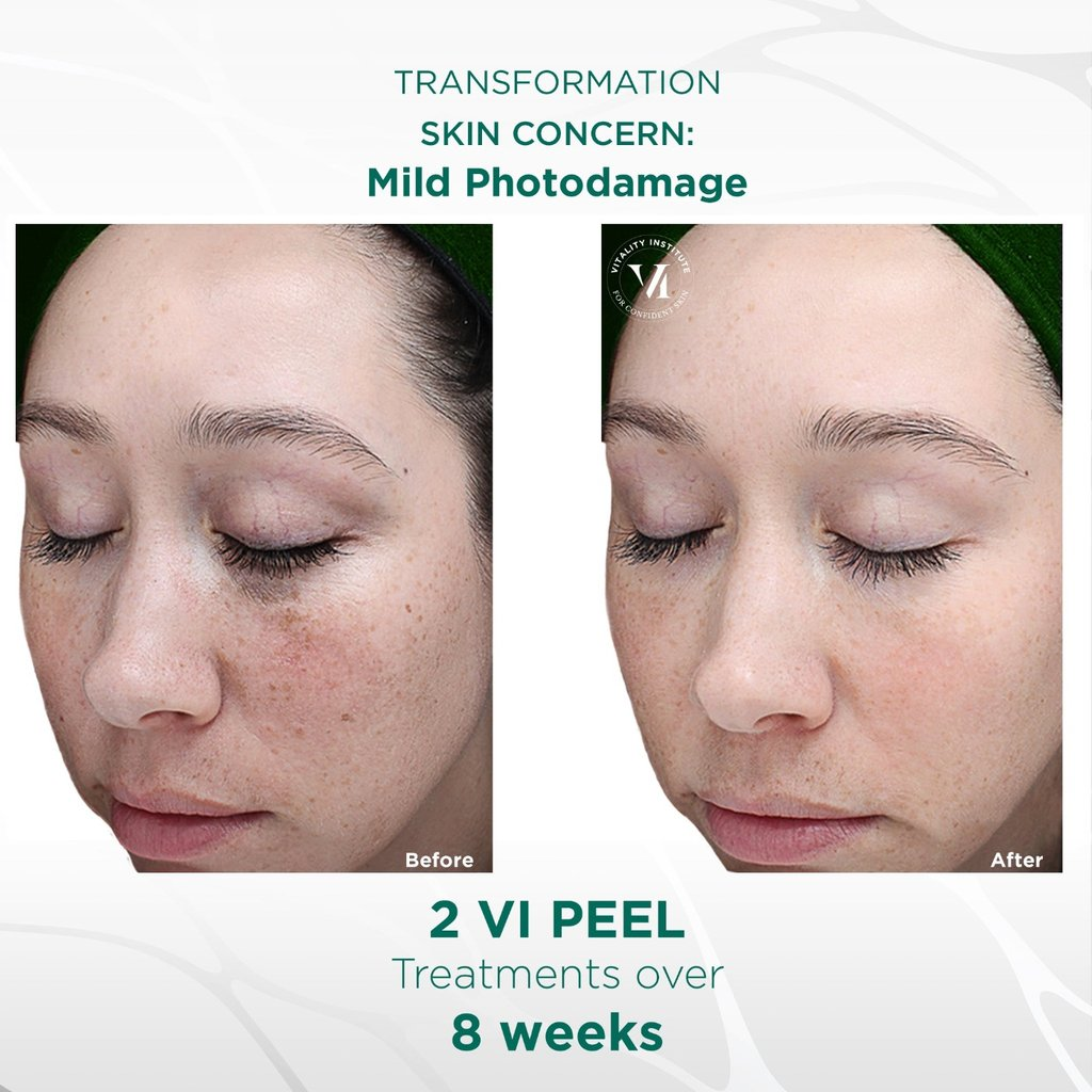 VI Peel Treatment - Before and After 1 - Face Glow NYC