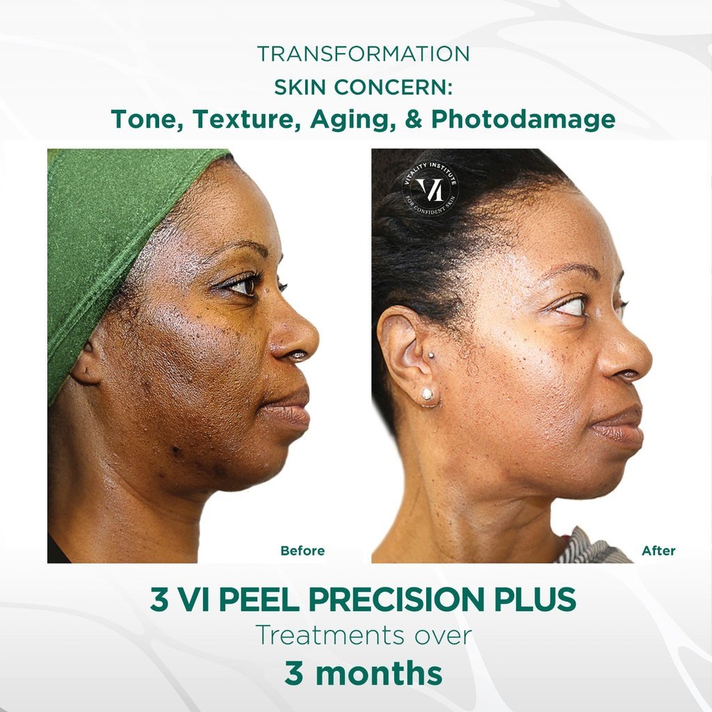 VI Peel Treatment - Before and After 2 - Face Glow NYC