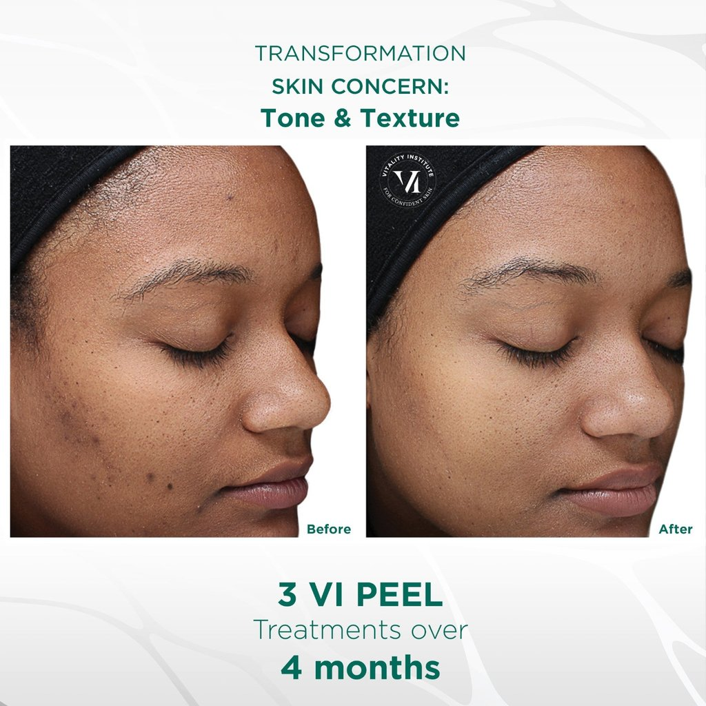 VI Peel Treatment - Before and After 4 - Face Glow NYC